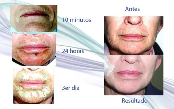 Peeling Profundo De Labios